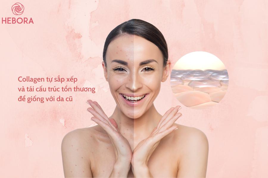 Cơ chế trị sẹo của Collagen